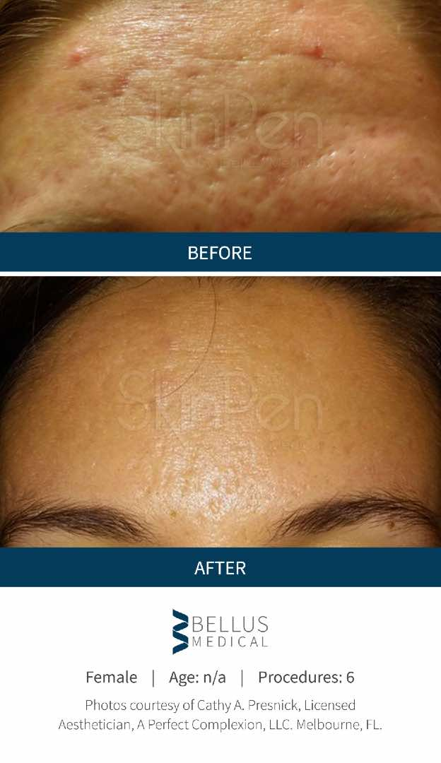 SkinPen® before and after 6