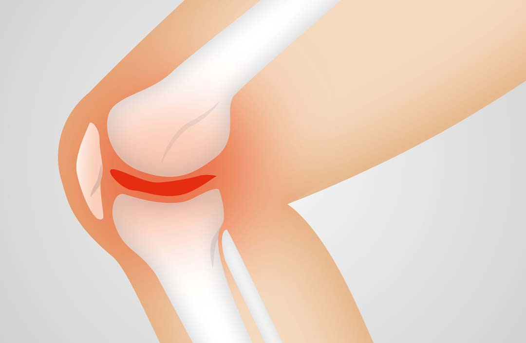 cross section of a knee with injured ligaments which could benefit from Prolotherapy injections