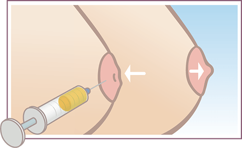 Graphic showing possible results from PRP nipple inversion procedure