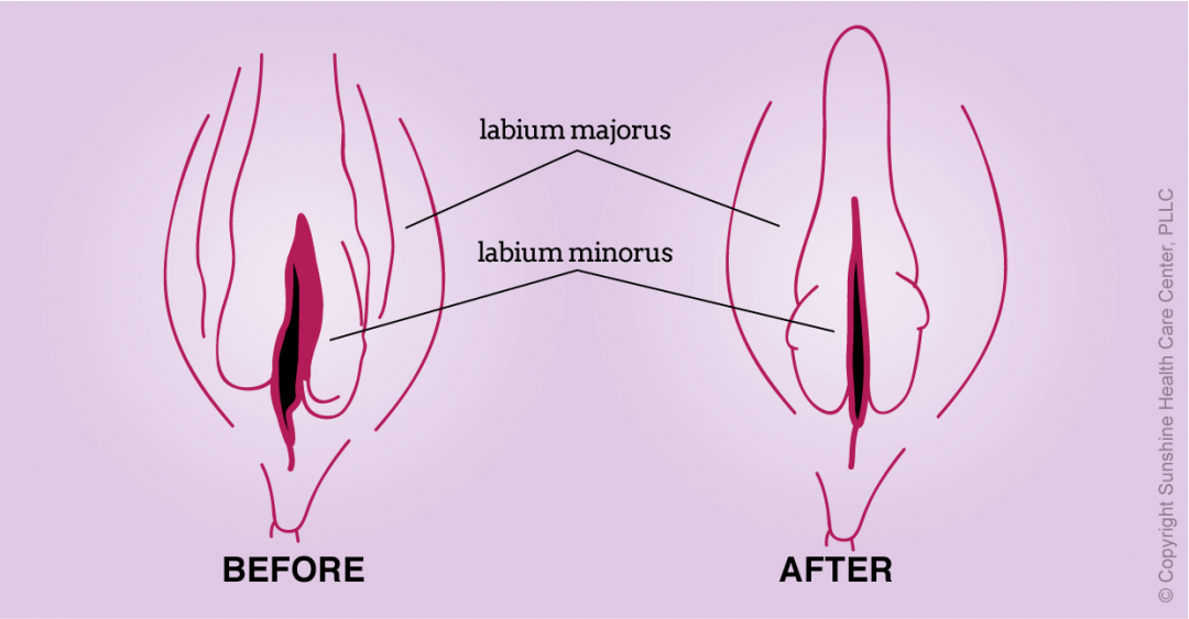 Artist rendition of possible results of vaginal labial rejuvenation procedure