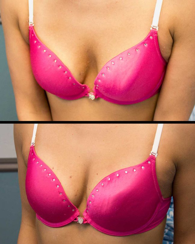 before and after of breastlift patient