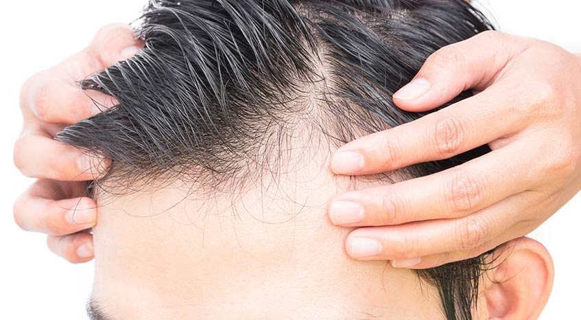 photo showing possible benefits of PRP hair restoration